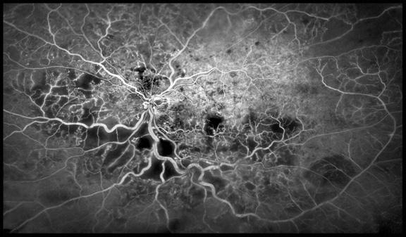 Vasi sanguigni all'interno dell'occhio