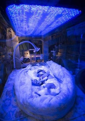 Un neonato prematuro sottoposto alla fototerapia ultravioletta