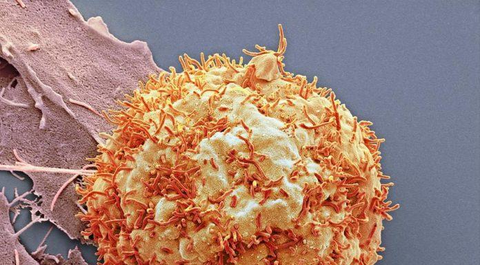 Carcinoma nel fegato