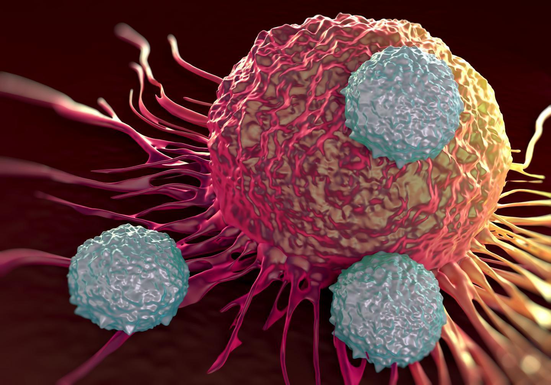 Linfociti CAR-T, leucemia sconfitta con una puntura da 475.000 dollari
