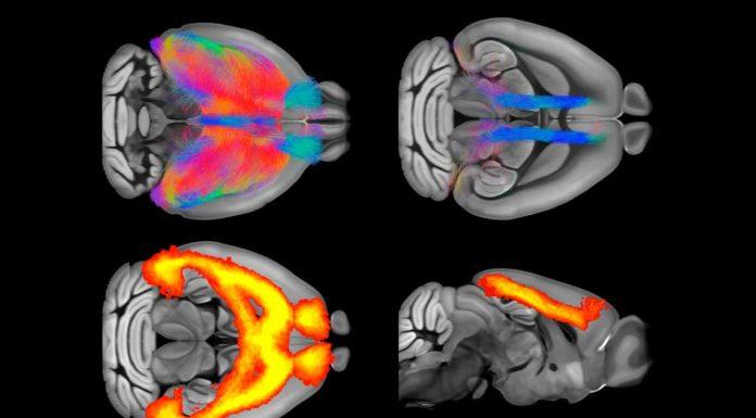 fMRI to study serotonin physiology