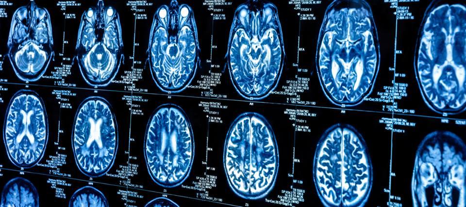 Alla scoperta di ciò ceh causa le malattie neurodegenerative