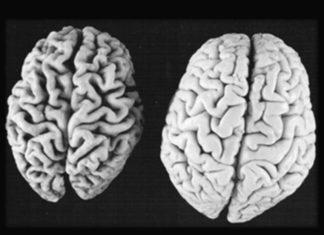 Italiani all'estero e ricerca sull'Alzheimer