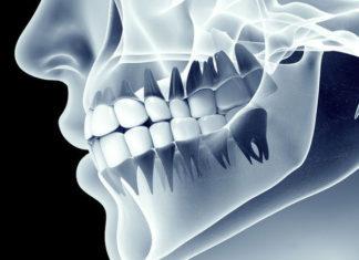 Dental regeneration