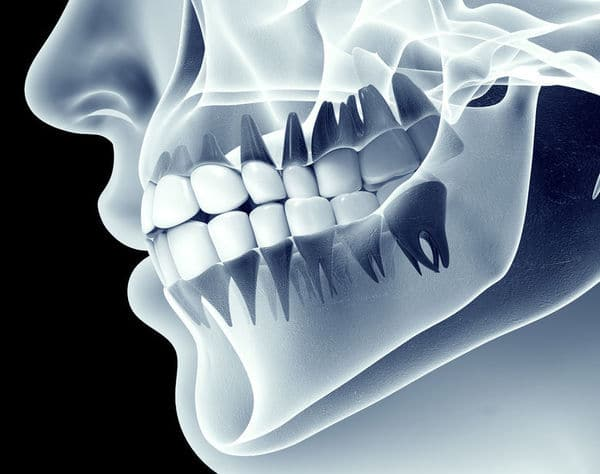 Dental regeneration