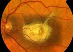 RIgenerazione della retina attraverso biomateriali basati su nanocavi
