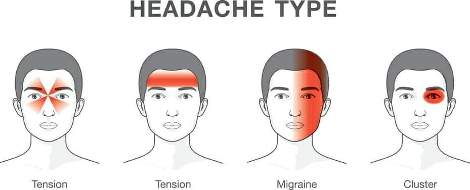 Un nuovo modo di curare l'emicrania