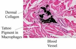 macrofagi validi alleati contro i tatuaggi