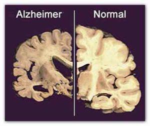 Alzheimer ed herpesvirus cause