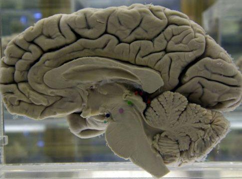 Alzheimer può essere legato all'herpesvirus