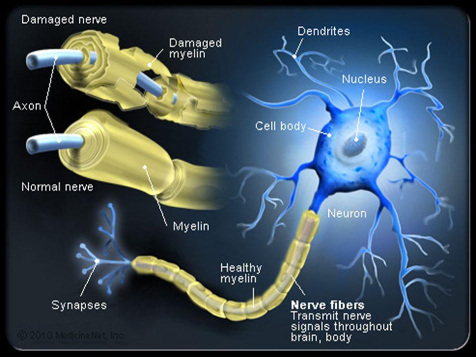 Il danno al sistema nervoso centrale prodotto dalla SM