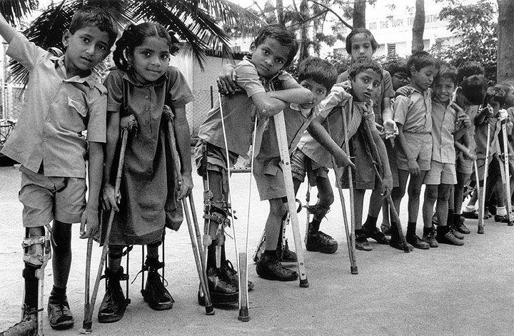 La Polio torna a far paura in Nuova Guinea