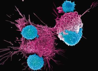 car-t terapia genica cura al cancro