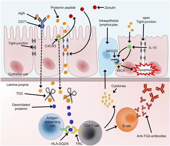 La celiachia e le sue conseguenze sull'organismo