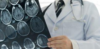 microbioma e sclerosi multipla