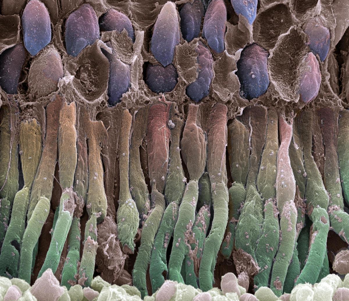анус под микроскопом фотографии