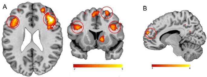 Corteccia Prefrontale Ventromediale