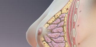 Tumore al seno, Tamoxifene