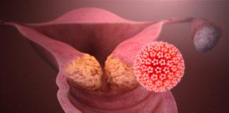 L'epigenetica e il cancro da HPV