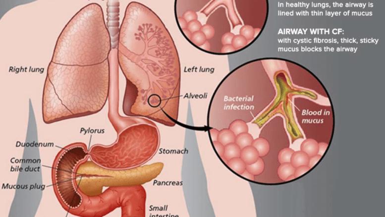 Un nuovo approccio per una patologia difficile