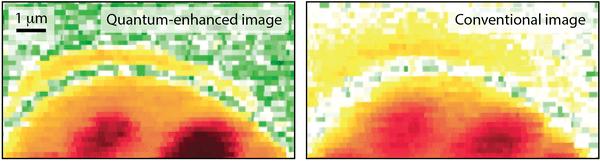 Differenza tra imaging del microscopio quantistico e convenzionale